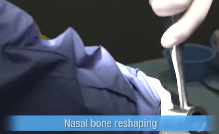 Rhinoplasty Nose Job Nasal bone reshaping 4