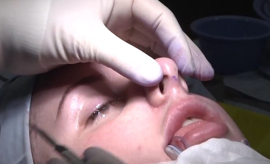deviated septum surgery cost - 910×552