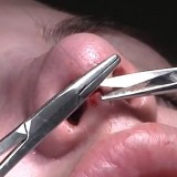 High Quality Surgery Video of Nose Job Rhinoplasty and Deviated Septum